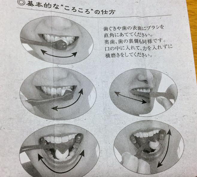 ころころ歯ブラシ使い方